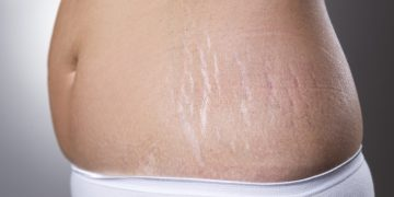 10-ways-to-get-rid-of-stretch-marks