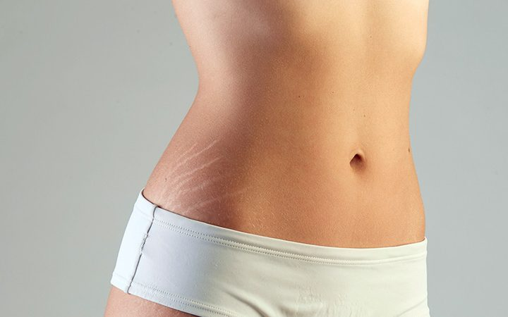 10 home remedies to treat stretch marks