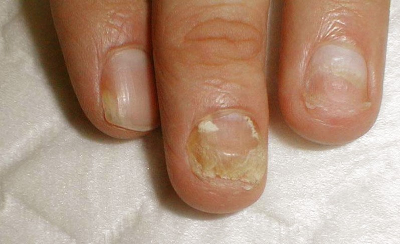 white spots on the nails